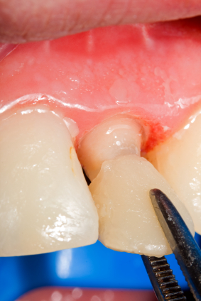 Times Where Dental Veneers Would Not Be The Solution For Your Dental Problem